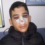 """Studente paraguayano aggredito nel Campus perché """"parla straniero"""""""